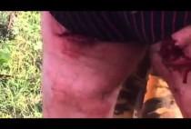Покоцанный кабаном охотник